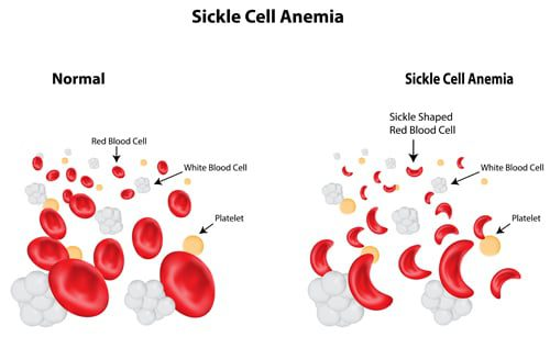 fanconi anemia essay Free essay: savior siblings the subject of savior siblings is a  it is also  important to note that both parents were carriers for fanconi anemia,.