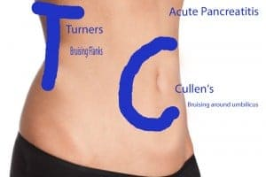 Cullen's sign