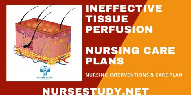 Ineffective Tissue Perfusion